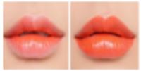 #KISSY