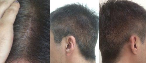 ブラック染毛力の使用例3-3