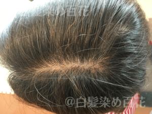 ルプルプ(LPLP)肌荒れ調査02