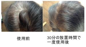 ブラック染毛力の使用例4